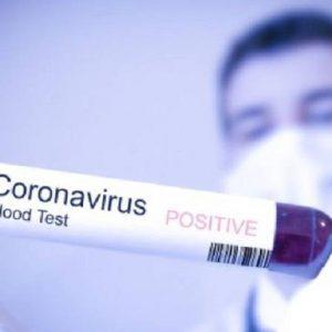 Apakah industri yang masih membuka peluang pekerjaan semasa berlakunya wabak Covid-19?
